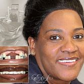 $1100 - Dental implant (Free consultation)